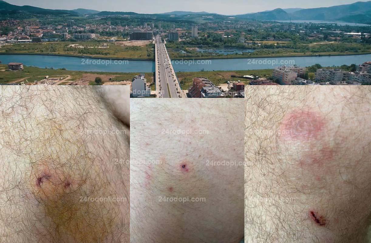 Кучета нападнаха и нахапаха мъж в центъра на Кърджали! (снимки)